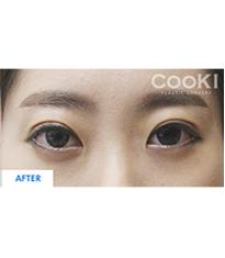 韩国COOKI整形医院双眼皮切开法案例图_术后