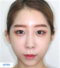 韩国COOKI整形医院组合手术案例图_术后