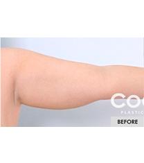 韩国COOKI整形医院手臂吸脂术案例图
