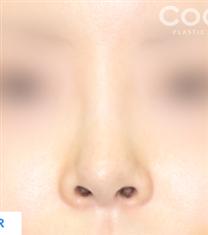 韩国COOKI整形医院鼻翼缩小手术图_术后