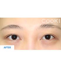 韩国COOKI整形医院双眼皮修复图_术后
