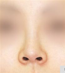 韩国COOKI整形医院鼻翼缩小手术图_术前