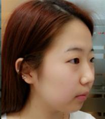 COOKI整形医院脸颊吸脂、双眼皮对比图_术前