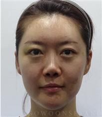韩国高恩世上整形外科鼻子修复对比图_术前