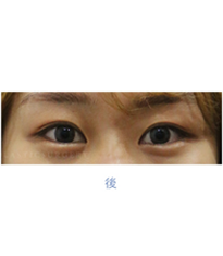 韩国高恩世上整形外科双眼皮埋线案例对比图_术后