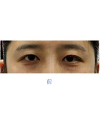 韩国高恩世上整形外科双眼皮修复案例对比图_术前