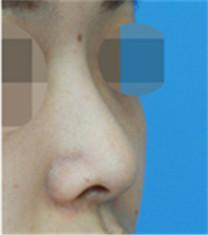 隆鼻对比案例