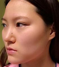 COOKI整形医院3D颧骨缩小术案例_术前