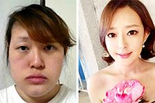 非常爱美真人故事,肖青韩国整容录