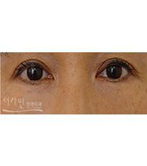 韩国德莱茵医院双眼皮案例对比图?_术后