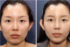 鼻修复手术最后一站 nano整形外科