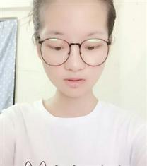 韩国COOKI整形医院下巴手术对比图_术后