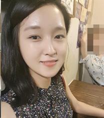 韩国COOKI整形医院下颌角整形案例