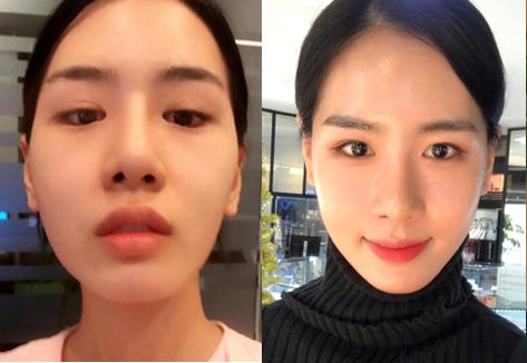 韩国COOKI整形医院颧骨缩小手术图_术后