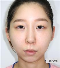 韩国COOKI整形医院组合手术案例图_术前