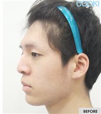 韩国COOKI整形医院-韩国COOKI整形医院驼峰鼻修复案例