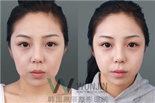 韩国原辰整形医院去除法令纹有三宝
