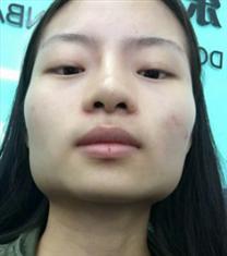 韩国COOKI整形医院下巴手术对比图_术前