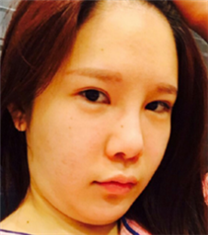 韩国COOKI整形医院下巴吸脂手术案例