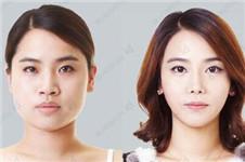 ID与face line做面部轮廓效果对比