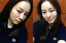 韩国必妩和赫尔希医院眼鼻整形风格对比!