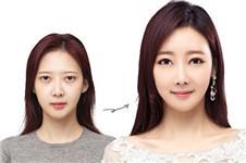 """韩国芭堂内视镜额头提升有效解决""""犯困眼"""""""