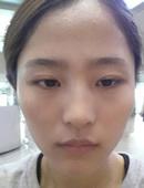 韩国菲斯普乐斯医院颧骨缩小案例!_术前