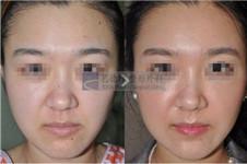 脸部自体脂肪填充 艺德雅与欧佩拉的区别是什么