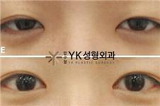 狎鸥亭YK与BIO医院眼综合整形案例比较