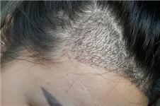 多娜整形医院发际线毛发移植真人案例对比图