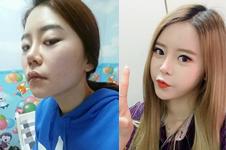 韩国灰姑娘医院少女脸整形案例展示!