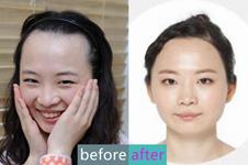 发际线高显老怎么办?韩国多娜整形医院毛发移植来解救