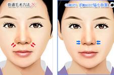 韩国高诺鼻医院隆鼻优势有哪些?