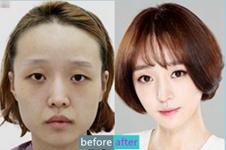 如何拥有明星般的幸福脸?妩丽整形医院轮廓手术案例分享