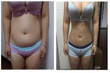 精灵恩和体引脂整形医院做吸脂瘦腰怎么样?