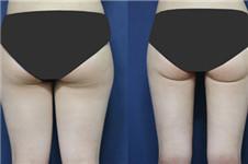 整容溶脂过程 附激光溶脂瘦腿前后的对比图