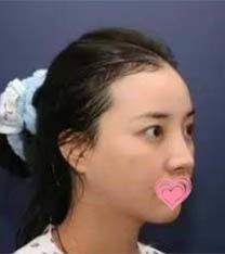 韩国碧夏整形医院小翘鼻整形案例_术前