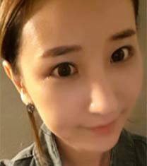 韩国碧夏整形医院隆鼻案例前后对比图_术后