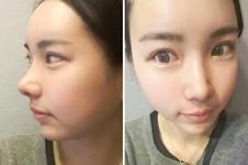 加美和秀美颜医院隆鼻手术效果PK!