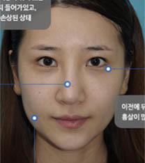 韩国碧夏整形医院隆鼻案例前后对比图_术前
