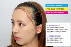 韩国毛杰琳医院做发际线移植手术有哪些特色?