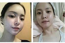 韩国美之爱EO整形外科肪填充案例和女神比哪个强?