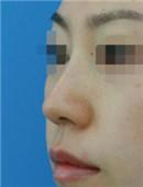 鼻综合前后对比案例