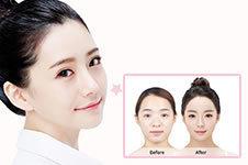 韩国朴原辰院长做鼻部整形效果怎么样?