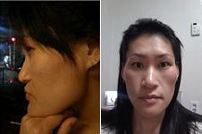 韩国元辰医院做双鄂手术效果好不好,有案例对比吗?