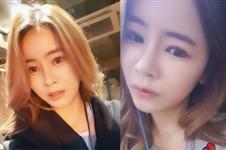 眼睛鼻子一起整变化大吗?韩国佳轮韩真人案例揭秘
