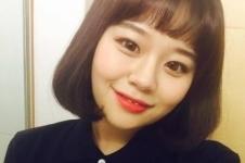韩国灰姑娘整形电眼手术怎么样?术后效果自然吗?
