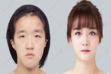 韩国菲斯莱茵和ID眼睛整形照片案例前后对比效果什么样?