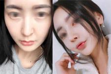 韩国加美整形外科医院朴建昱院长鼻部整形案例