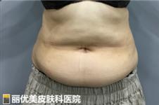 韩国丽优美皮肤科腹部迷你吸脂300毫升能瘦几斤
